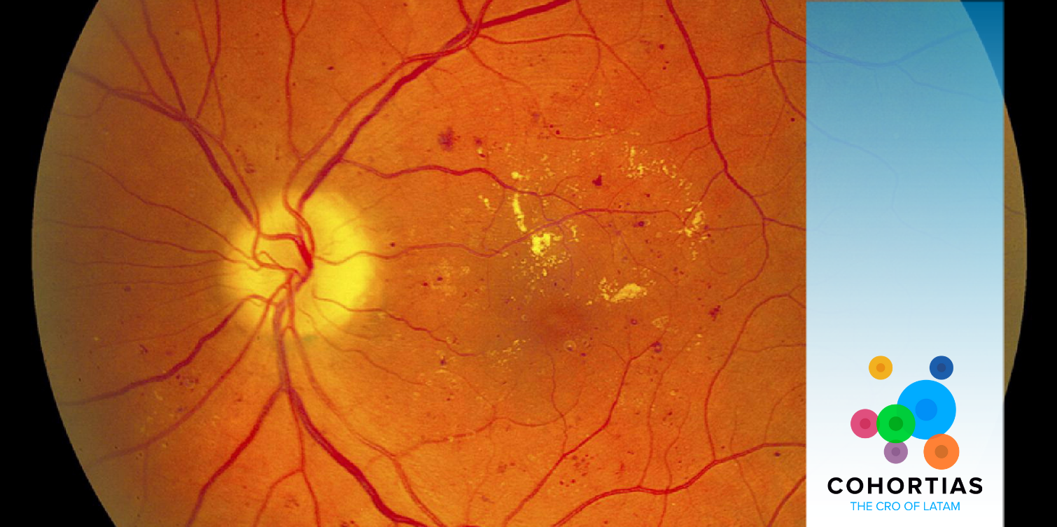 Read more about the article Clinical Trials – Diabetic retinopathy therapy trial.